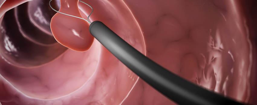 Полип эндометрия как лечить без операции отзывы